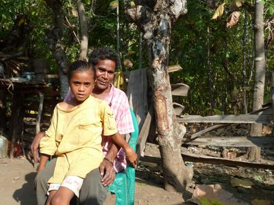 Improved Leprosy Services