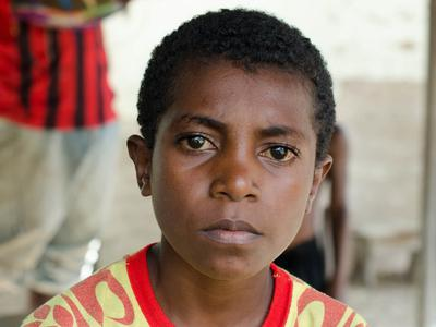 Help stop leprosy in PNG